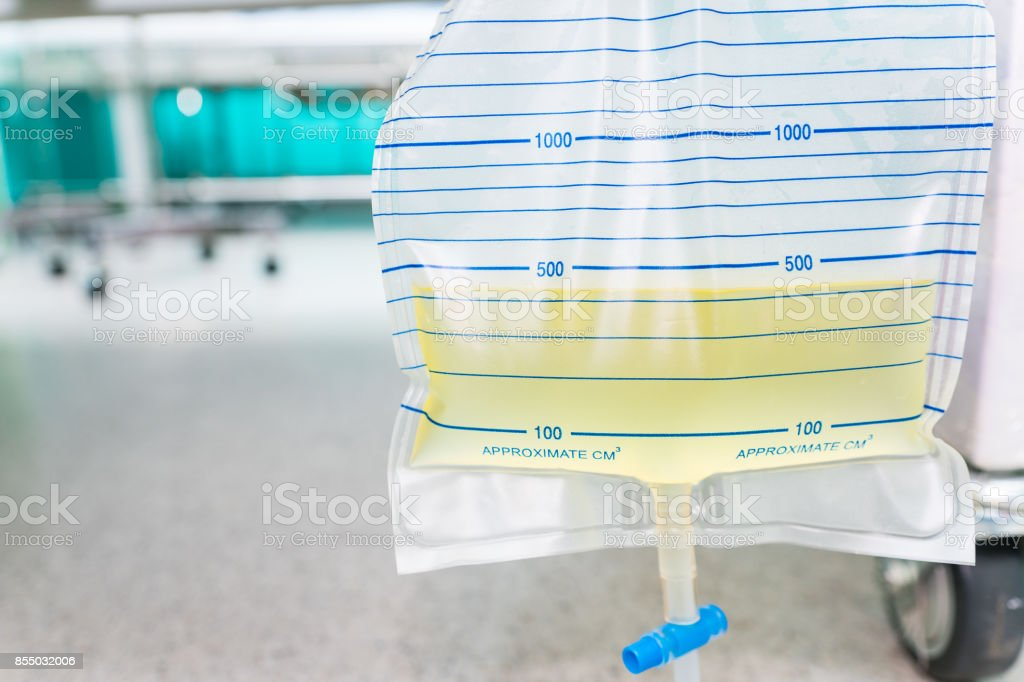 Urine bag hanging beside the patient's bed. Inside the hospital room. stock photo