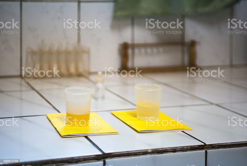 Urine is tested in African laboratory stock photo