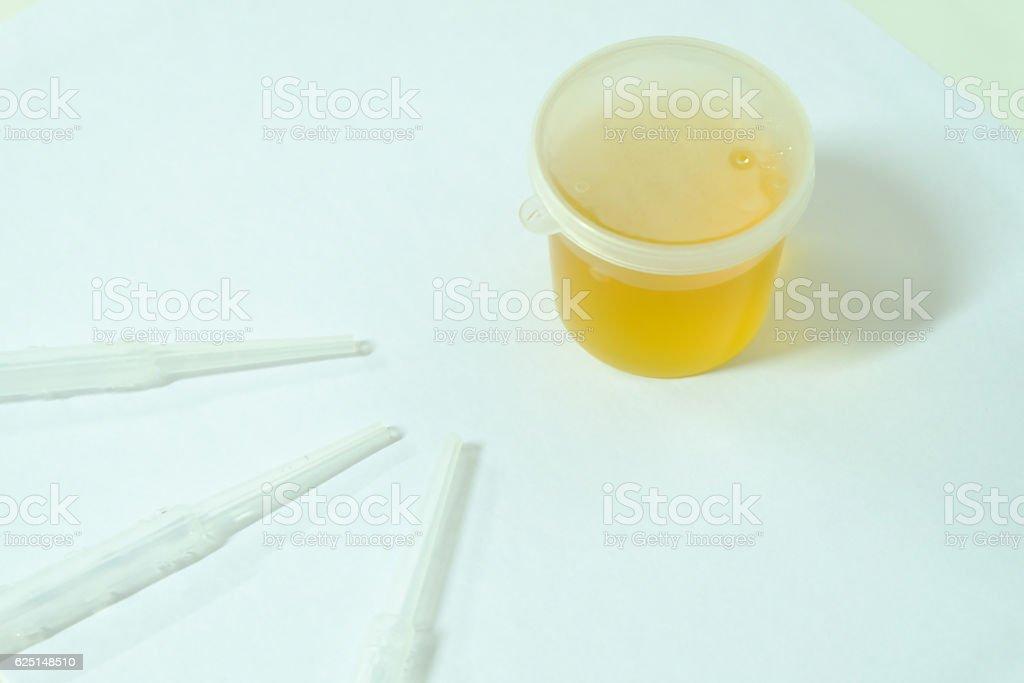 Urine sample for laboratory analysis stock photo