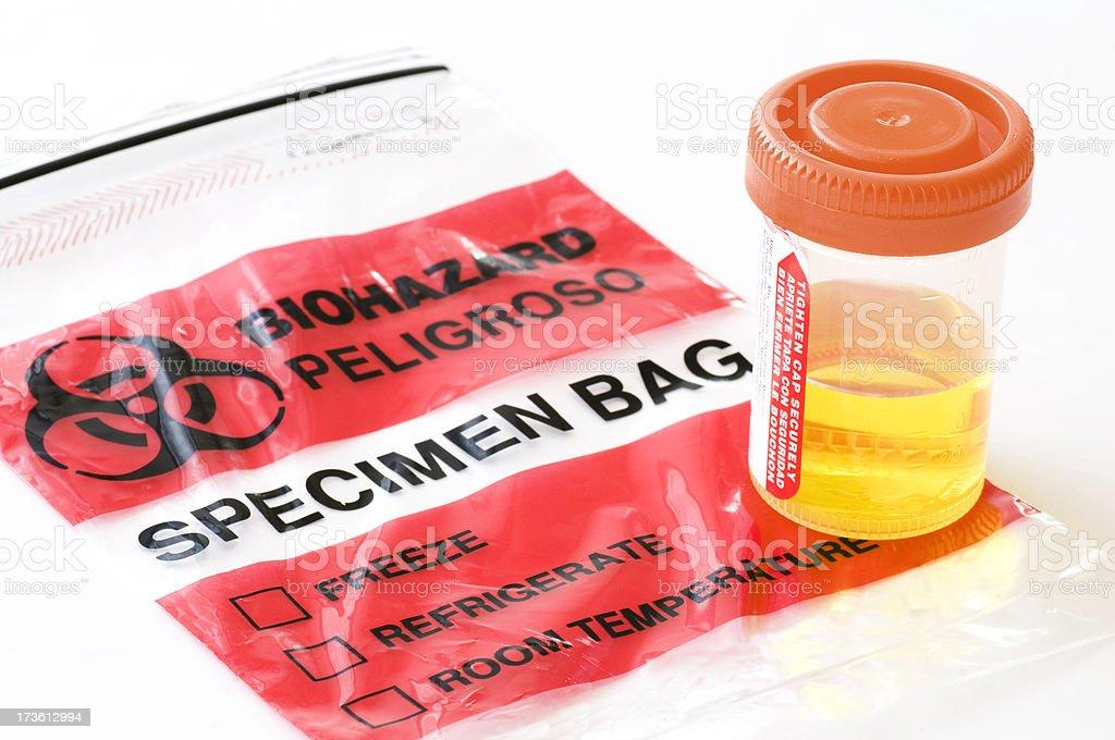 Urine Sample on Specimen Bag royalty-free stock photo