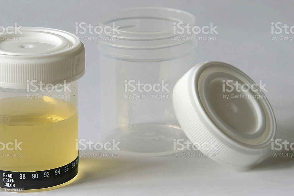 urine sample test royalty-free stock photo