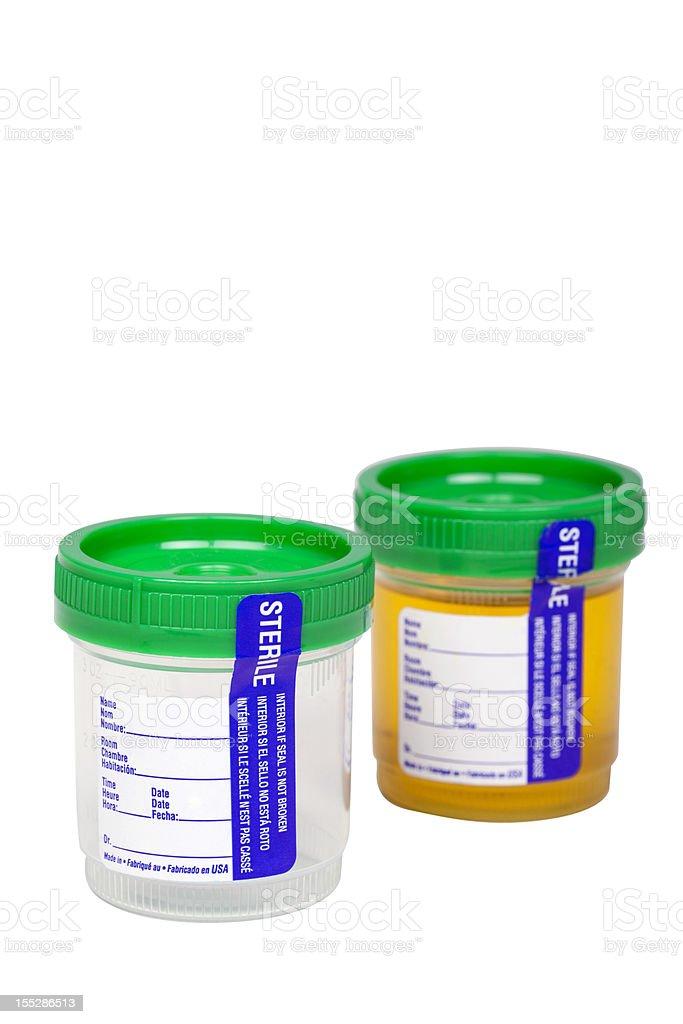 urine specimen stock photo