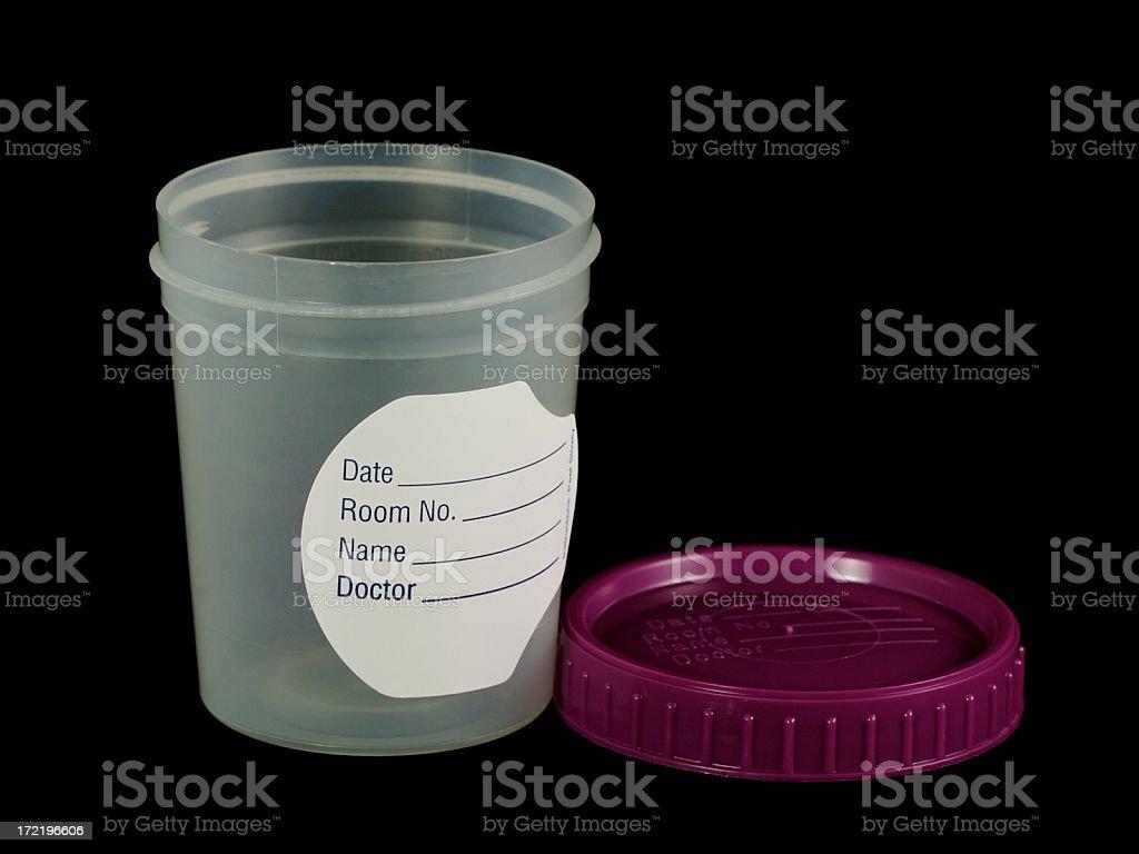 Urin test – Foto