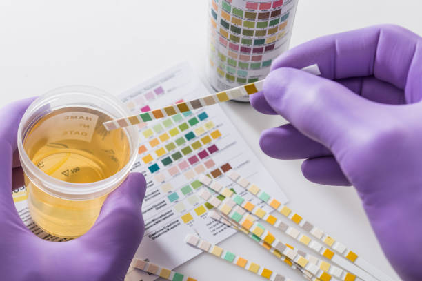 urine test strips in purple gloves Test tires in violet gloves with test chart and urine can specimen holder stock pictures, royalty-free photos & images