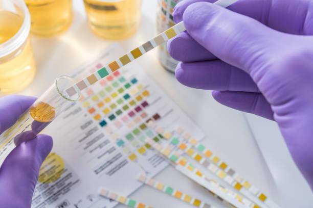 urine test strips in paarse handschoenen - spoorelement stockfoto's en -beelden
