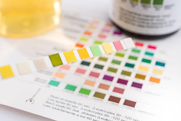 urine test strips - spoorelement stockfoto's en -beelden