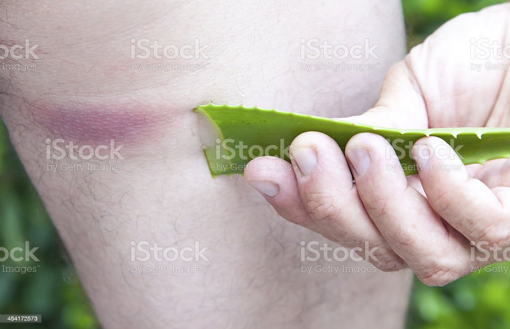 Using  of ALOA VERA leaf after insect bite stock photo