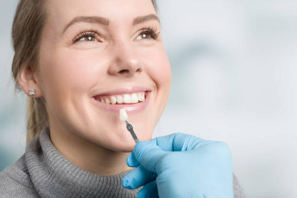 Using shade guide at mouth to check veneer of tooth Using shade guide at mouth of a woman to check veneer of tooth tooth crown stock pictures, royalty-free photos & images