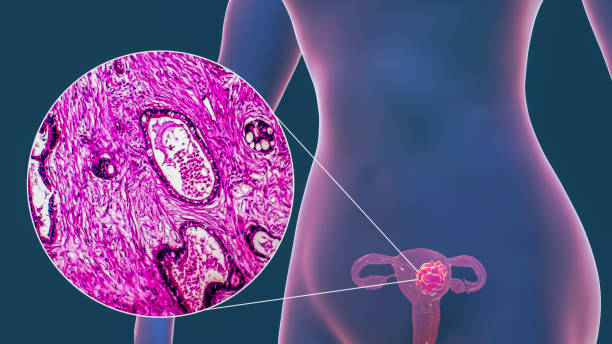 Uterine cancer, illustration and micrograph stock photo