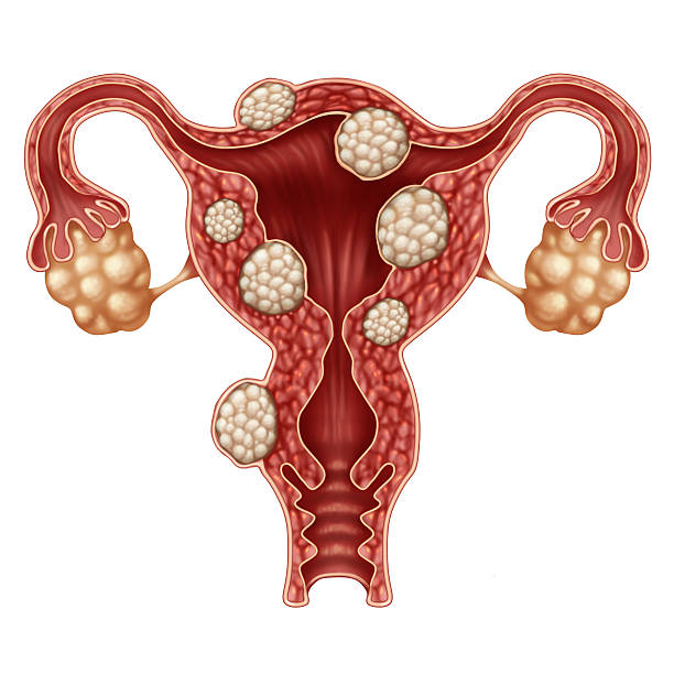 uterine fibroid - uterus stock pictures, royalty-free photos & images
