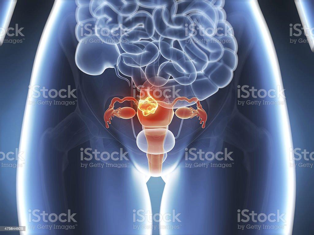 uterus cancer stock photo