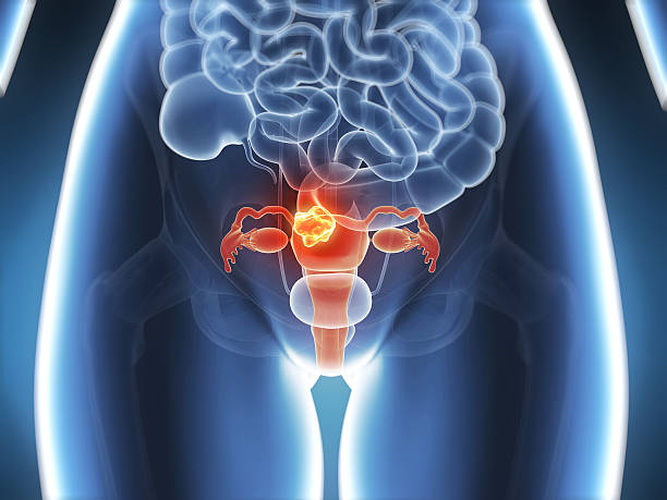 uterus cancer stock photo