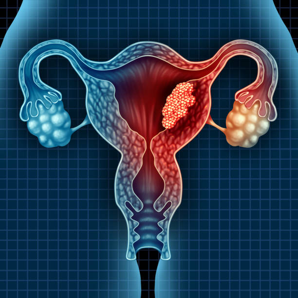 uterus cancer - uterus stock pictures, royalty-free photos & images