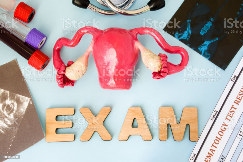 Uterus ovary and cervix gynecological examination, tests and diagnostics procedure concept. Model of female reproductive organs exam surrounded by medical, laboratory tests, equipment and exam result stock photo