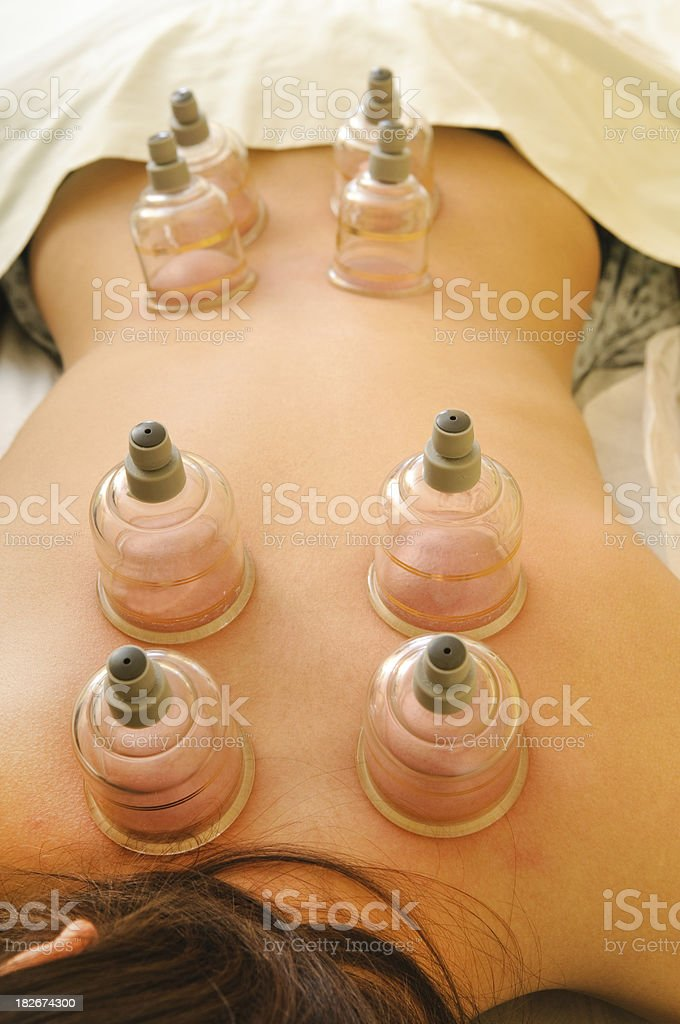 Vacuum Cupping on Woman's Back - Acupuncture Series stock photo