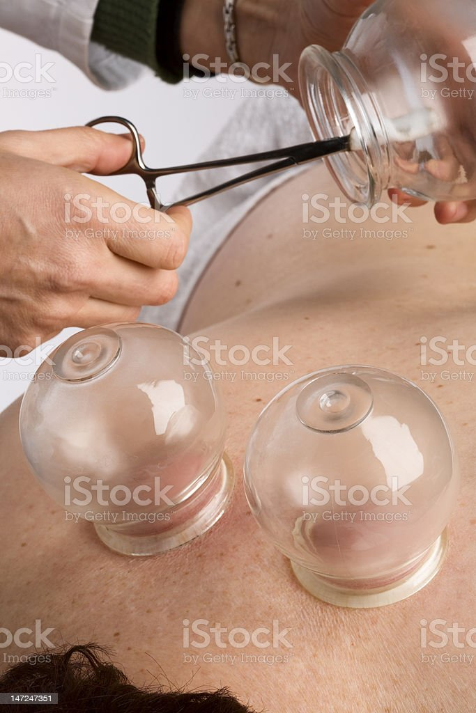 Vacuum cupping stock photo