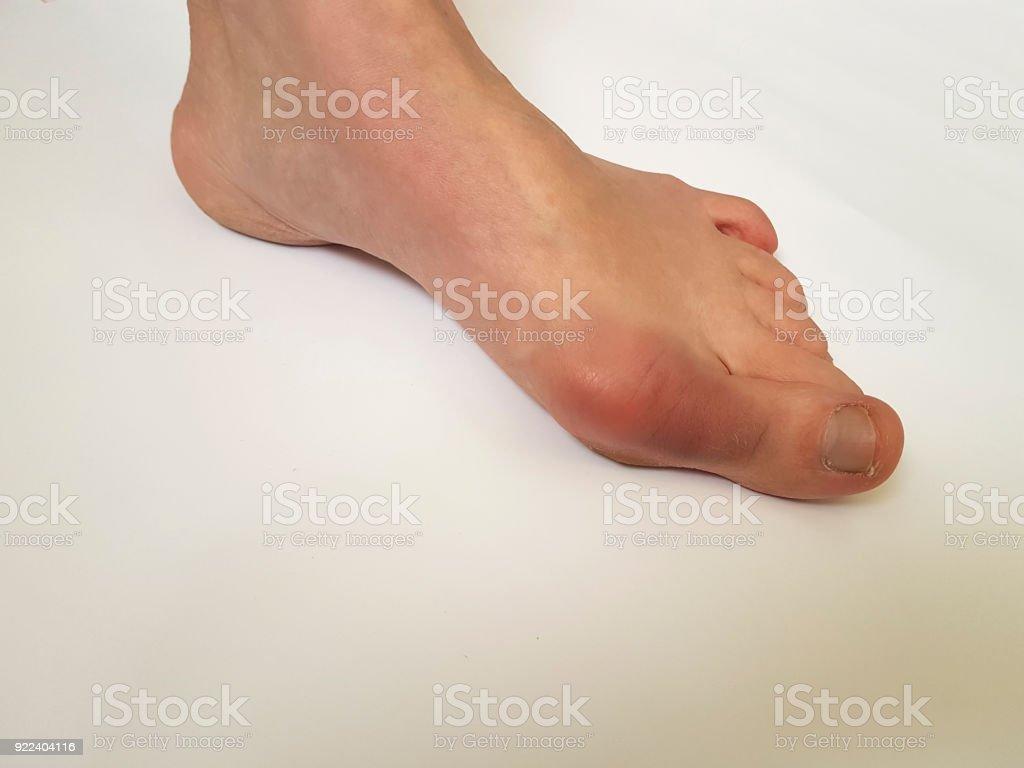 valgus female leg on a white background stock photo