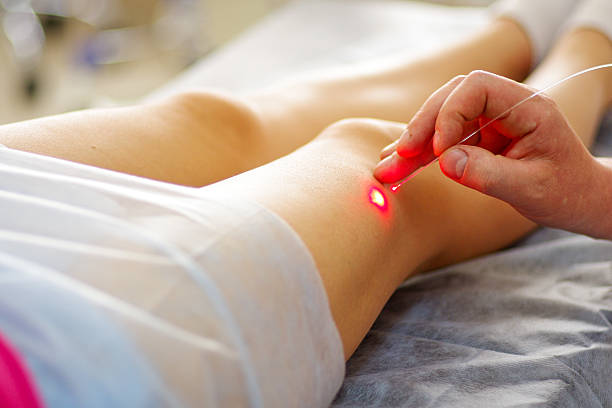 varicose laser treatment - bloedvat stockfoto's en -beelden