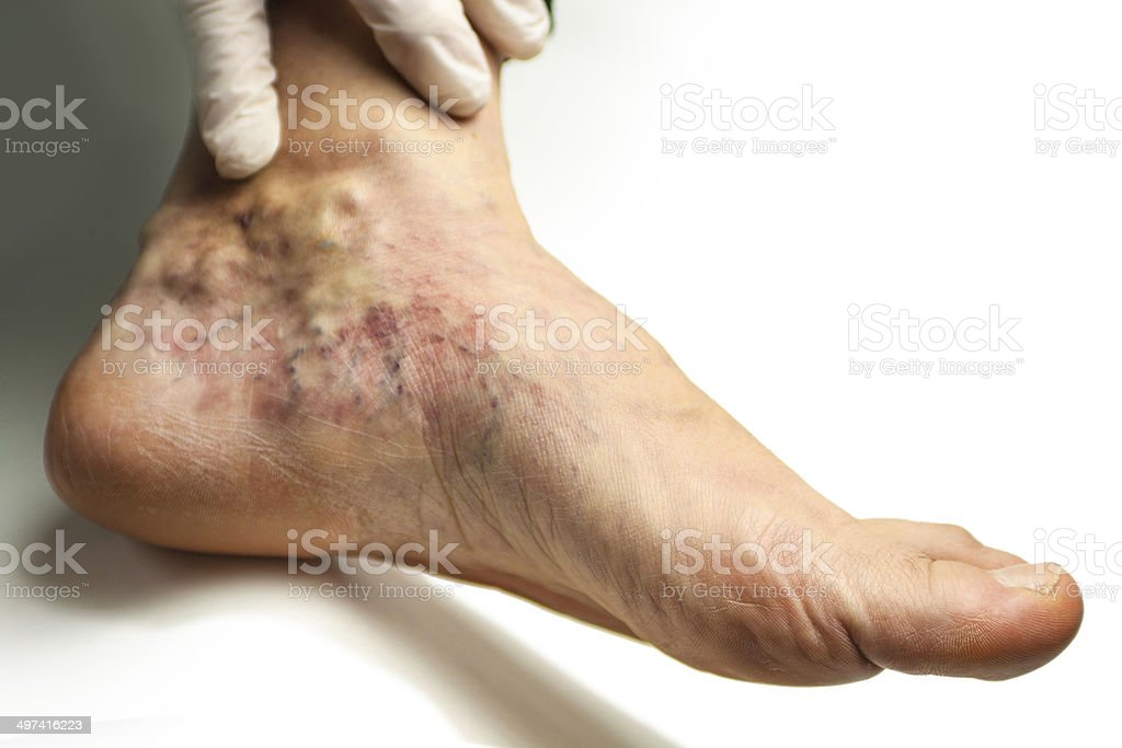 Varicose vein stock photo
