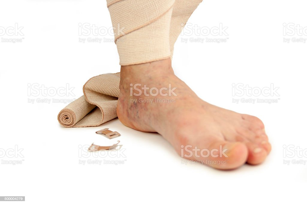 Varicose veins and bandage stock photo