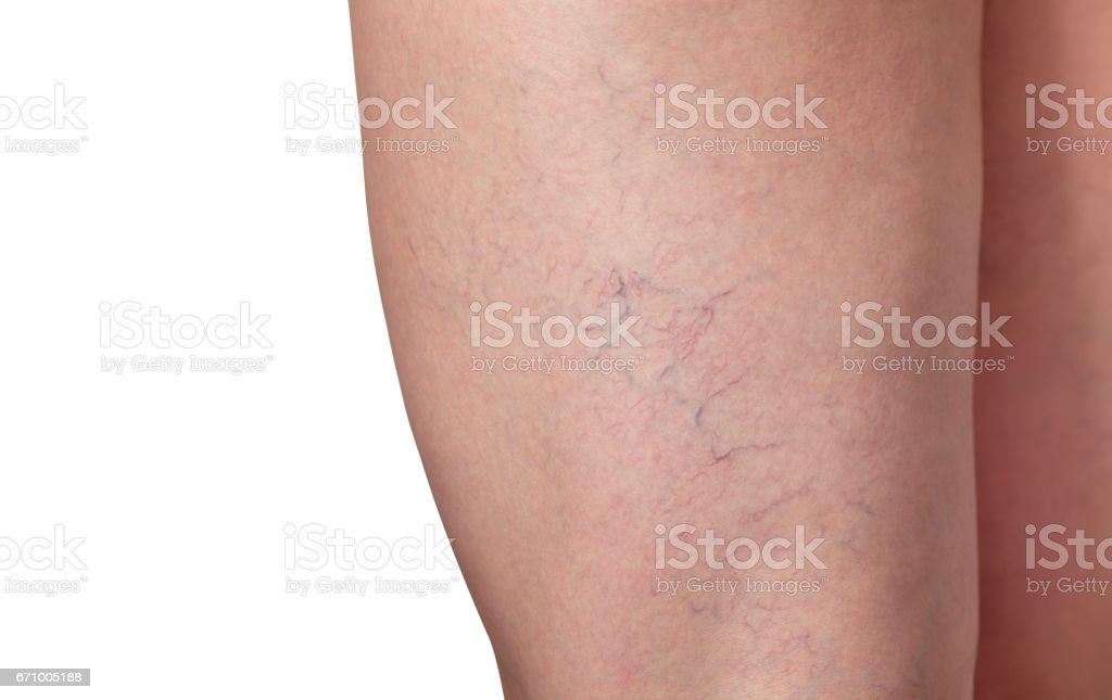 Varicose Veins And Capillary Veins In The Legs Stock Photo More