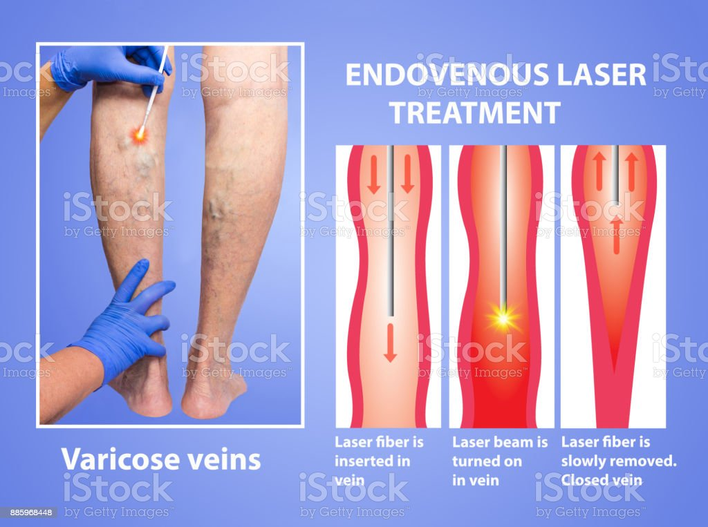 Varicose Veins And Laser Stock Photo More Pictures Of Anatomy Istock