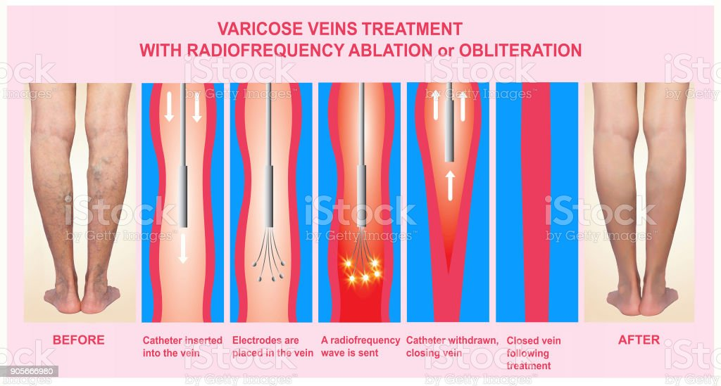 Varicose Veins and Treatment with radiofrequency ablation stock photo