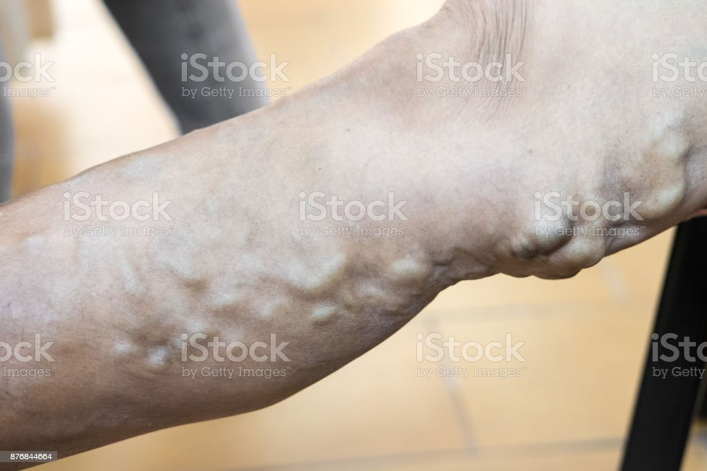 Varicose veins are enlarged, swollen, and twisting veins, commonly refers to the veins on the leg. They are caused when faulty valves in the veins allow blood to flow in the wrong direction or pool. stock photo