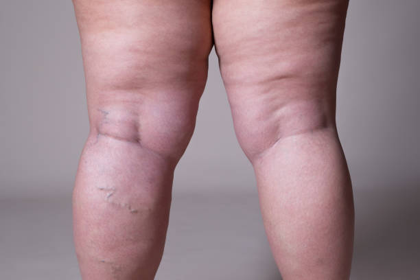 Varicose veins closeup, fat female cellulite legs stock photo