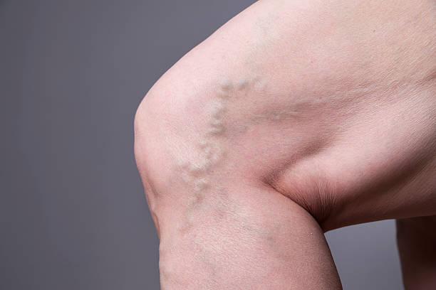 varicose veins closeup. thick female legs - enfermedades de los pies fotografías e imágenes de stock