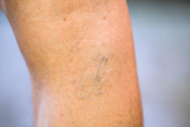 Varices en pierna - foto de stock