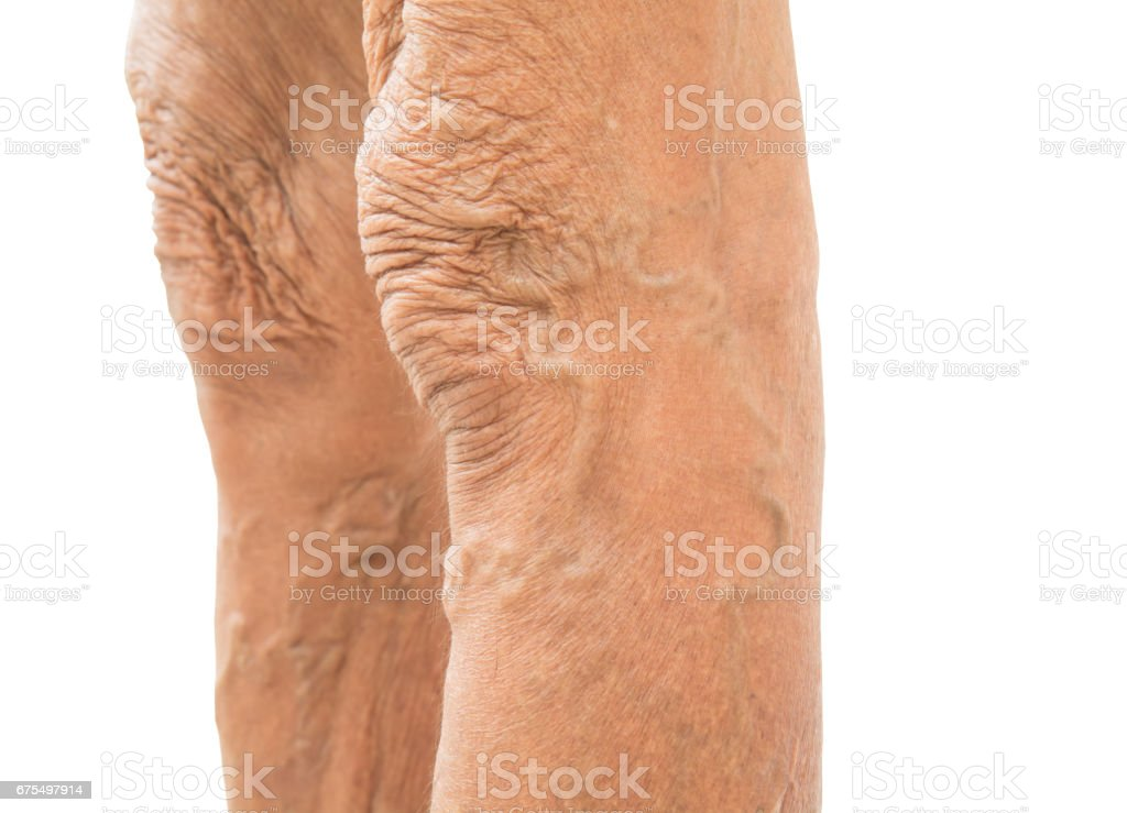 Varicose veins in old women stock photo