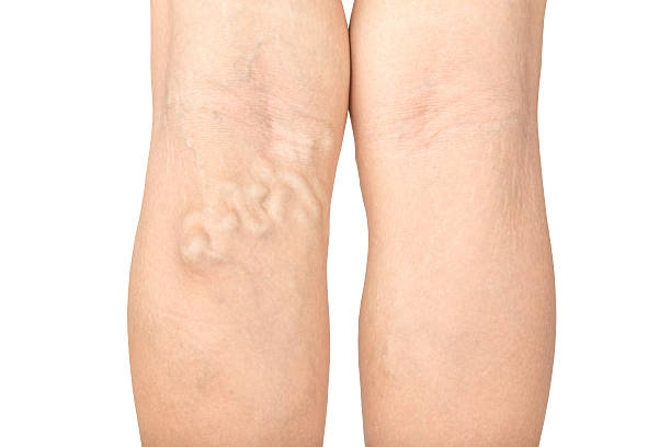 Varicose veins in the legs ストックフォト