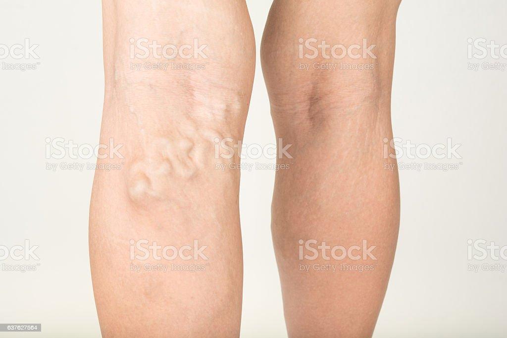 Varicose veins in the legs stock photo