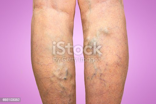 istock Varicose veins on a female legs 693103052