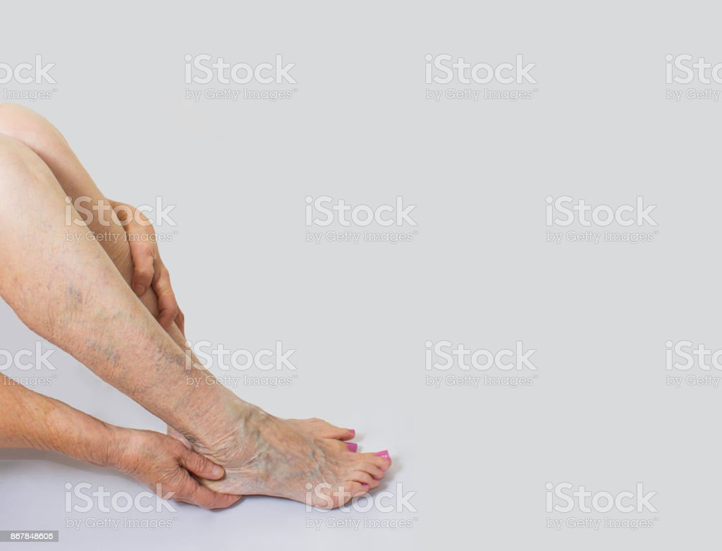 Varicose veins on a female legs stock photo