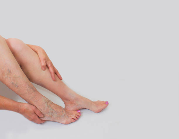 Krampfadern an weiblichen Beinen – Foto