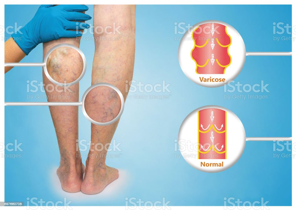 Varicose veins on a female senior leg stock photo