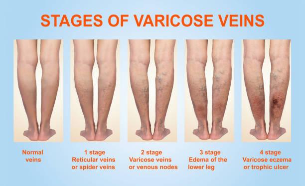 las varices en una pierna senior femenina - enfermedades de los pies fotografías e imágenes de stock