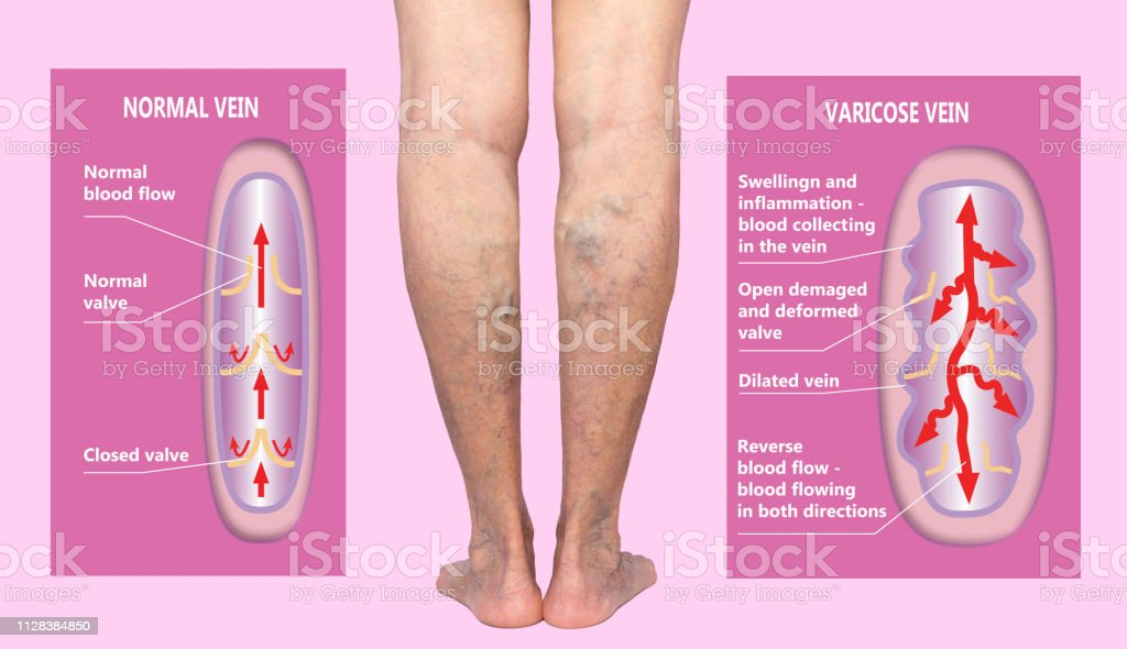 Varicose veins on a female senior legs. The structure of normal and varicose veins. stock photo