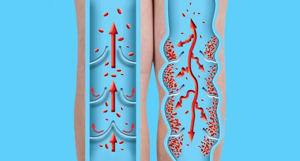 Krampfadern auf einem weiblichen Seniorenbein. Die Struktur der normalen und Krampfadern. – Foto