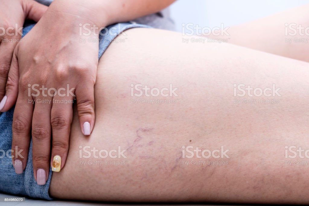 varicose veins on a leg in women. ,Health care concept stock photo