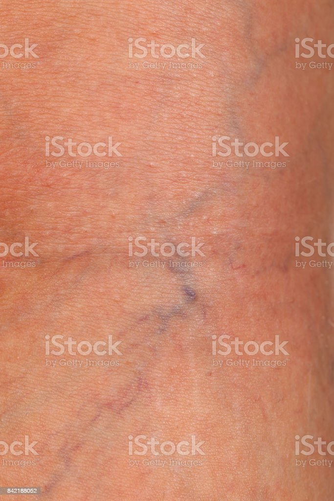 Varicose veins on female leg stock photo