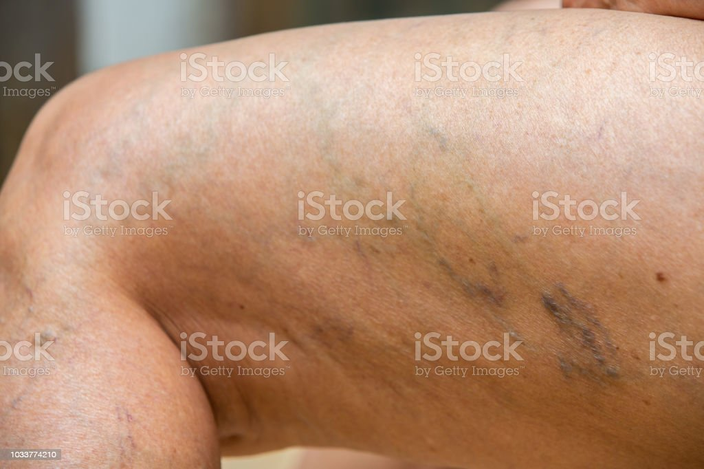 Varicose veins on knees and legs in Senior women, Body concept stock photo