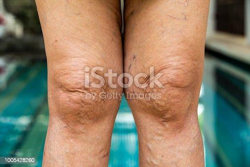 istock Varicose veins on knees and legs in Senior women 1005428260