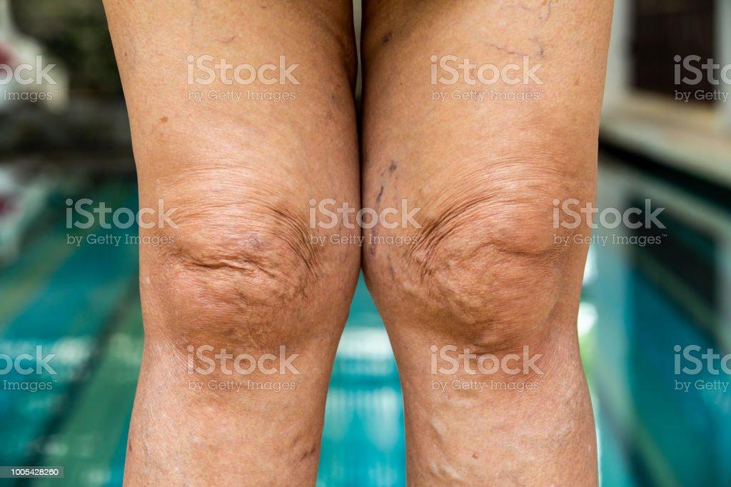 Cтоковое фото Varicose veins on knees and legs in Senior women
