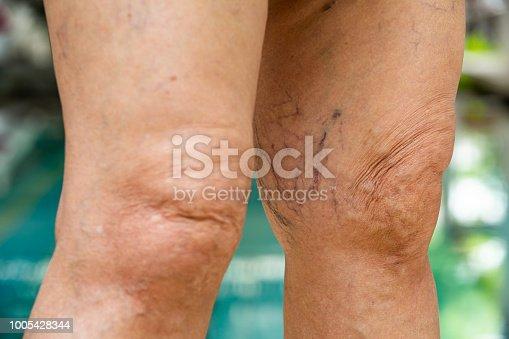 istock Varicose veins on knees and legs in Senior women 1005428344