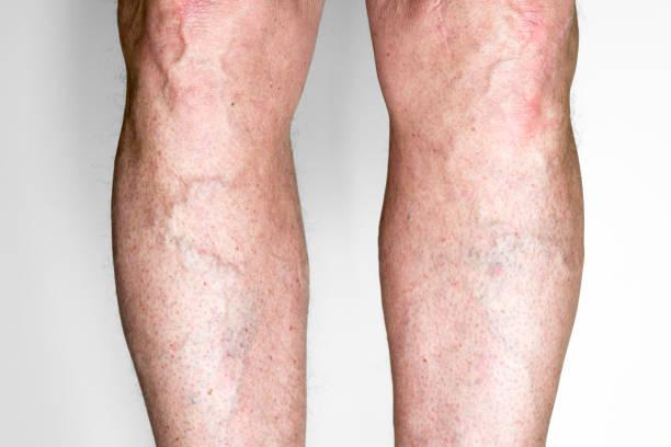 Varicose veins on legS stock photo
