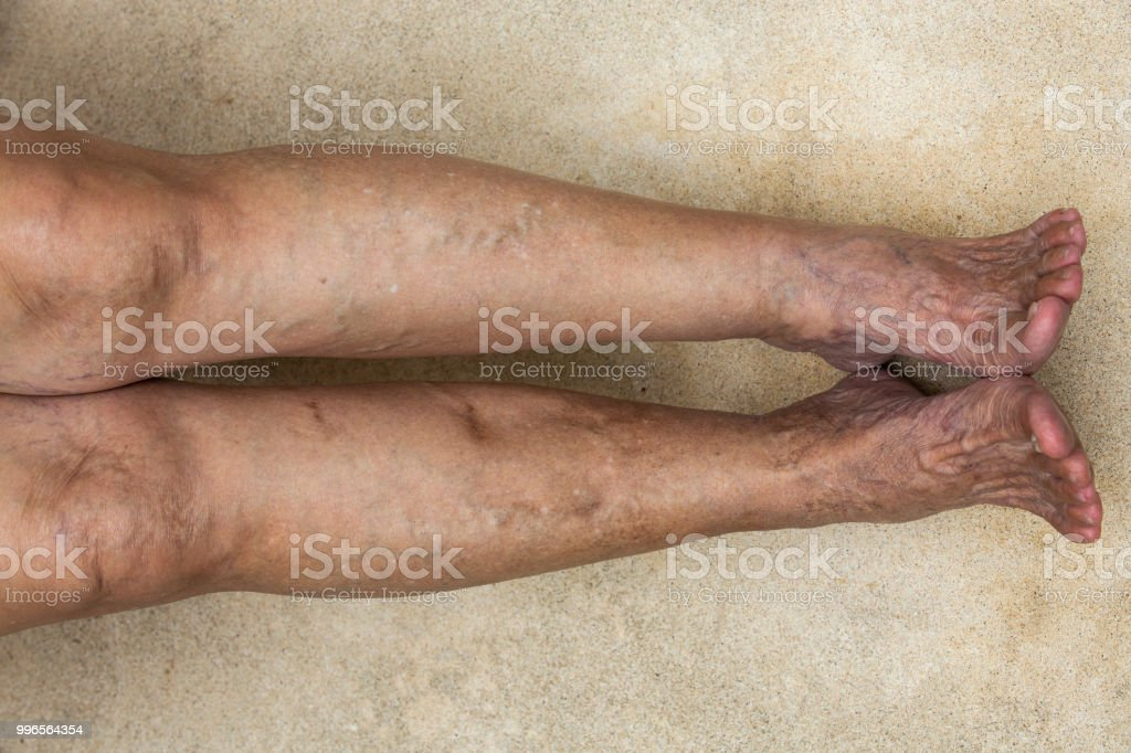 Cтоковое фото Varicose veins on legs with feet in Senior woman