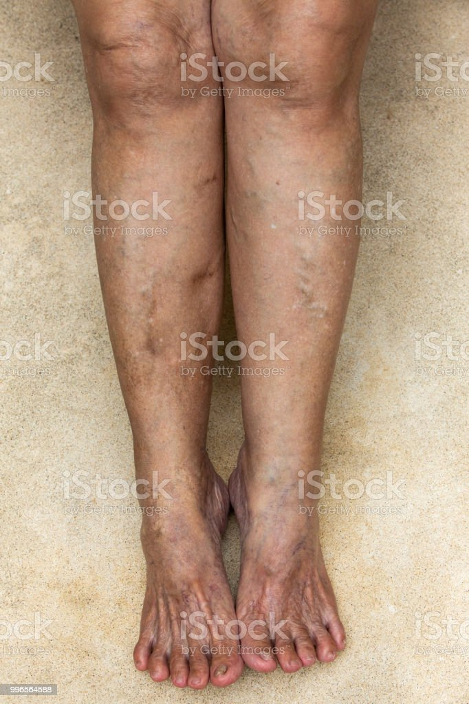 Varicose veins on legs with feet in Senior woman stock photo